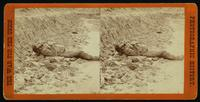 Confederate soldier killed in the trenches of Fort Mahone, April 1, 1865
